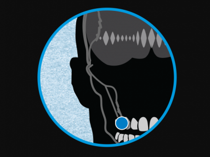 Przewodnictwo kostne przybliży nas do ery cyborgów. Słuchawki staną się niewidoczne