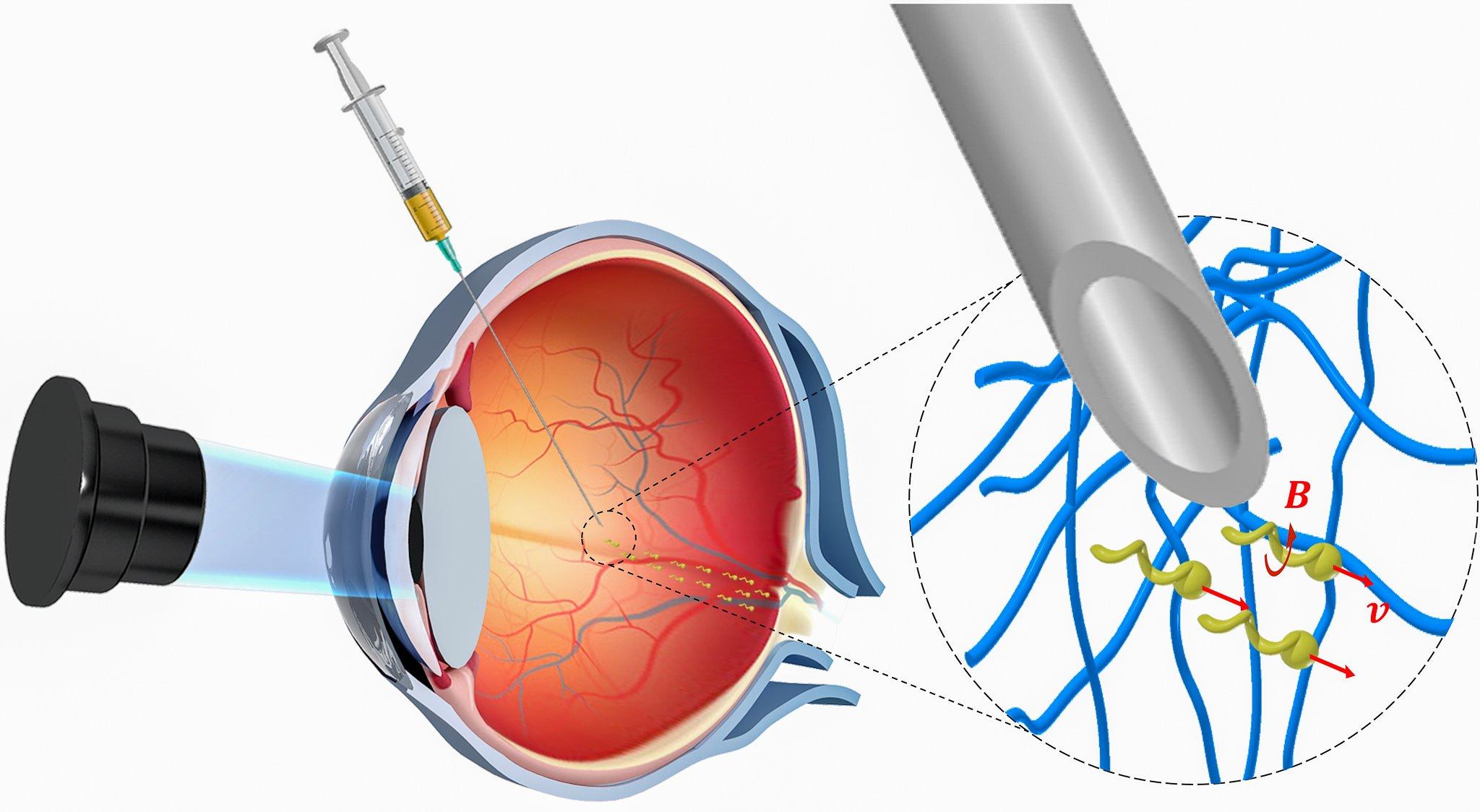 Nanoroboty rodem z filmów dostarczą lekarstwo poprzez gałki oczne