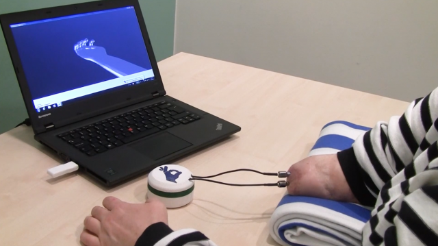 Lekarzom udało się połączyć sztuczną rękę z układem nerwowym